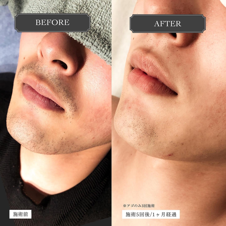 """.【Before︎After】.こちらは顔セット脱毛ビフォーアフターの写真です🏻.左は施術前の顔の写真、右は施術5回後、1ヶ月経過していますアゴは将来生やしたくなるかも?とのことで3回でひとまず施術をストップしてます..鼻下、アゴ下の変化にご注目明らかに毛量が減っているのがお分かりいただけると思います️..5回となりますと、勿論個人差はございますが日々の髭剃りが少し楽になった!というお客様の喜びの声も耳にします.ツルツルを目指すならまだ回数は必要となりますが、""""毛量を減らしたい""""""""髭剃りの負担を少し減らしたい""""そういう方は、5回コースで様子見もアリかもしれません◎🏻.どうせならツルツルを目指したい!という方には、割引率が最も高い10回コースがオススメにはなります..好みの量まで減らすことを目標にしておられる方や、形をキープする為にデザイン脱毛をされる方など、目的は様々🧏🏻♂️.一言でヒゲ脱毛と言っても最終目標は人それぞれなんです..このあたりはカウンセリングでお客様とじっくりご相談して、ベストな脱毛プランを見つけられたらと思います♪🏻..Hotpepperには初回クーポンをご用意しておりますので、お試しも大歓迎ですよ🧑🏻.顔セット(全体)脱毛は初回半額以下️《1回 8,400円 ⇢ 3,000円》※鼻下、アゴ、アゴ下、首、もみあげ、ほほ、おでこ..是非ご予約お待ちしております♪@glanz_2021 ..️GLANZ -グランズ-️https://glanzashiya.com/.≪無料カウンセリングのご予約受付中≫// HotpepperまたHPから! \\.[ADDRESS]〒659-0065 兵庫県芦屋市公光町7-12メインステージ芦屋公光3階.︎阪神本線 阪神芦屋駅徒歩1分︎近隣にコインパーキング多数有り︎芦屋警察署の裏.[TEL]080-6521-5785.[MAIL]glanz.ashiya@icloud.com.[営業時間]11:00〜21:00(最終受付20:00).[定休日]不定休.———————————————————...#ひげ脱毛 #メンズ脱毛 #髭脱毛 #ヒゲ脱毛 #男性脱毛 #男性美容 #芦屋脱毛サロン #光脱毛 #ワックス脱毛 #wax脱毛 #芦屋 #メンズ脱毛サロン #芦屋エステ #全身脱毛 #神戸脱毛 #神戸メンズ脱毛 #メンズ脱毛サロン #西宮メンズ脱毛 #vio脱毛 #美容 #芦屋市 #阪神芦屋 #タイガース #阪神 #阪神タイガース  #美容男子 #痛くない脱毛 #芦屋脱毛 #脱毛キャンペーン #西宮脱毛 #脱毛キャンペーン #hotpepperbeauty ."""
